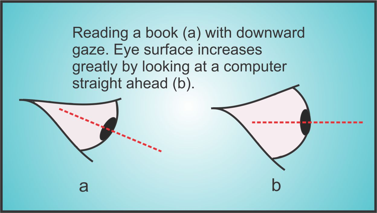 dry eyes are affected by the angle of your eye when reading books, computer or mobile devices