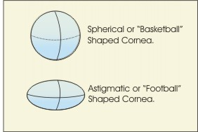compare spherical vs. astigmatic eye
